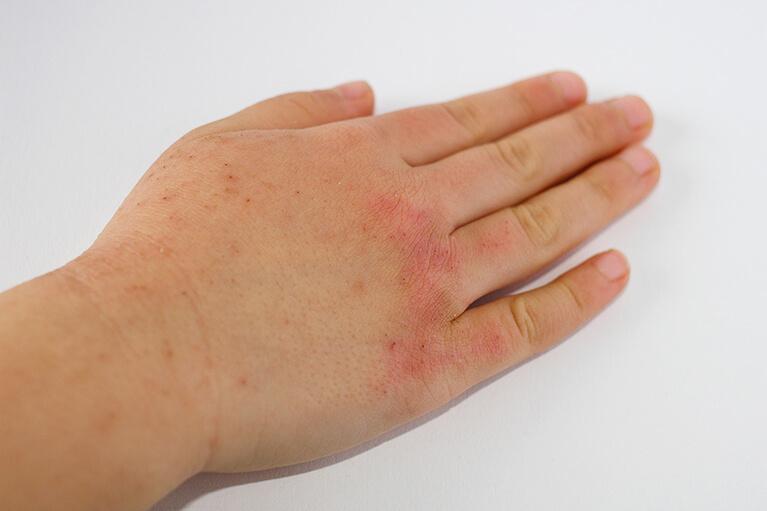 アレルギー 金属